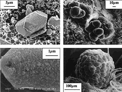 penial-gland-calcite-microcrystals
